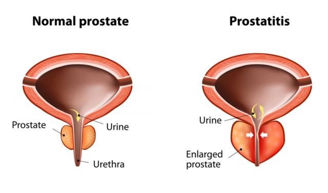 Prostate Enlargement in Dogs | PetCoach